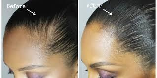 bald spor hair styles how to hide a bald spot melting pot beauty