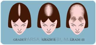 bandage hair shaped pattern baldness hair loss treatment fue transplant