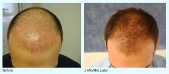 hair transplant costs in the philippines prp hair loss treatment cost results prp for hair loss