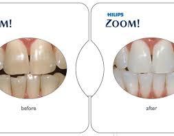whitening led teeth whitening valuable led home teeth whitening