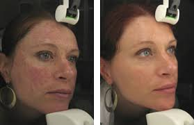 intense pulsed light therapy intense pulsed light treatment aura skin spa