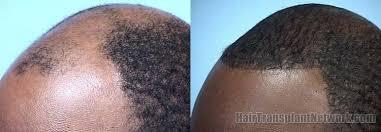hairline restoration for black men black hair transplant results best black hair 2017