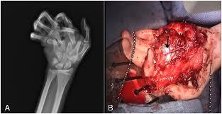 outcomes of digital artery revascularization in pediatric trauma