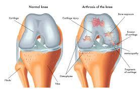 Anatomy Of The Knee Knee Pain