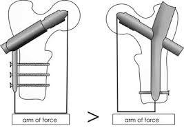 intramedullary nail fixation of intertrochanteric fractures u2022 post