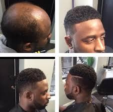 hair weaves for balding men man weaves a game changer for balding men cash for 2 5
