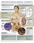 La <b>insuficiencia renal crónica</b>