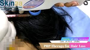 prp hair loss treatment cost in india best hair loss 2017