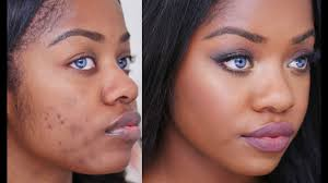 how to colour in a scar in your hairline how to cover acne scars on dark skin youtube
