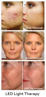 blue and red light therapy for acne reviews 57 best red light therapy images on pinterest red light therapy