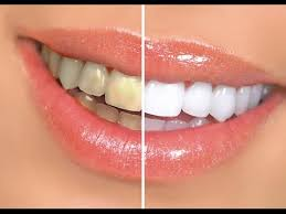 led light for teeth how to whiten teeth at home with led light white with style youtube
