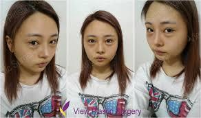 view plastic surgery korea