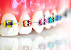 nickel free braces braces orthoclinic