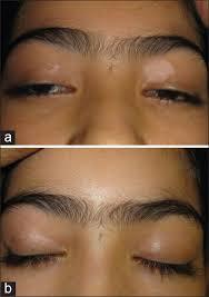 uvb l for vitiligo targeted ultraviolet b phototherapy in vitiligo a comparison