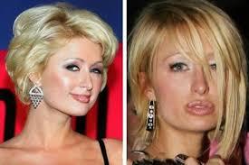 What Happened To Paris Hilton - plastic surgery gone wrong celebrities 12 worst plastic surgery