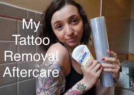tattoo removal aftercare youtube