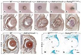 retinoic acid dependent eye morphogenesis is orchestrated by