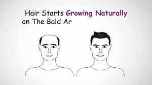 hair transplant calculator hair transplant cost in ahmedabad 9522202224 youtube