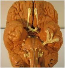 Gross Brain Anatomy Gross Anatomy