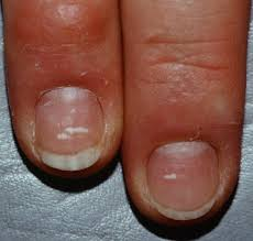 what do irregular white marks on your fingernails indicate about