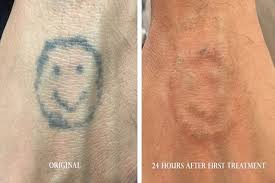 before u0026 after photos laser tattoo removal