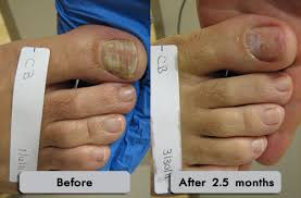 how to remove nail fungus naturally fortheloveo fandrea