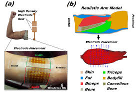 Bicep Innervation Imaging Three Dimensional Innervation Zone Distribution In Muscles