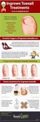 best 25 treatment for ingrown toenail ideas on pinterest