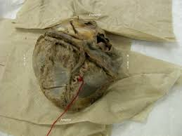 Sheep Heart Anatomy Quiz Anatomy Tables Heart