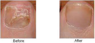nail fungus laser hair removal center nyc aesthetic medical
