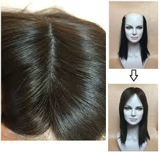hair toppers for thinning hair women realistic silk top 100 human hair thin hair topper top piece for