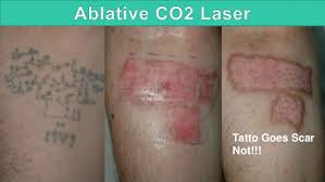 laser tattoo removal 2015