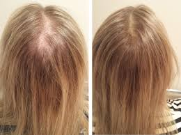 women thin hair on top top 8 causes of hair loss in women