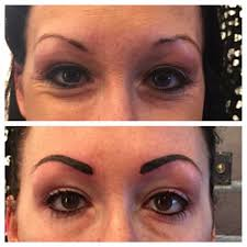 Eyebrow Tattoo Before And After Before And Immediately After Tattooing Color Is Always Dark And