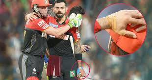 virat kohli played kkr match with 10 stitches in his left arm