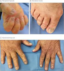 nail changes of systemic amyloidosis after bone marrow