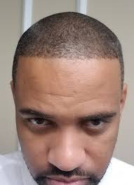 hairline restoration for black men african american hair restoration african american hair