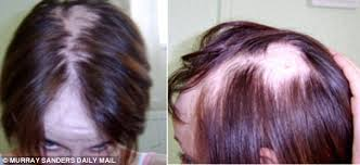 reviews from hair burst alopecia sufferer s hair regrows after she is given drugs to treat