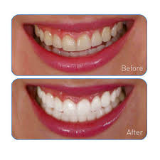 amazon com go smile teeth whitening system 20 count tooth