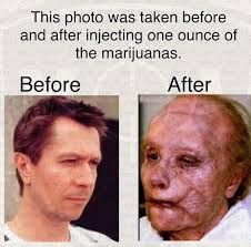 Injecting Marijuanas Meme - this is your meme on drugs album on imgur