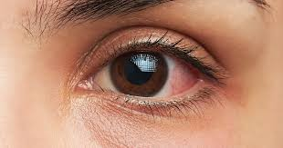 Eye Infections What Should You Do