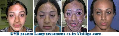 uvb light therapy for vitiligo how to use the uv b 311nm l uvb lamp net