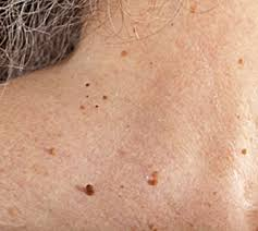how to get rid of skin tags on the neck fast and without any
