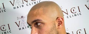 pics of scalp micropigmentation on people with long hair scalp micropigmentation vinci hair clinic