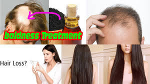black seed for hair loss hair growth how to use kalonji black seed oil for hair growth and