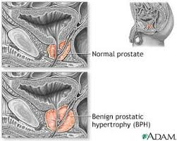 green light laser prostate surgery cost something2share enlarged postrate treatment prostate surgery