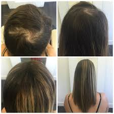 Vancouver Hair Extensions pacific hair extensions and hair replacement vancouver bc 810