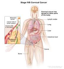 Pictures Of Anatomy Of The Human Body Cervical Cancer Treatment Pdq U2014patient Version National Cancer
