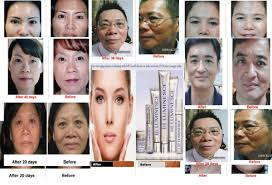 Luminesce Skin Care Review Scar Scar Removal Blemishes Acne Scars Stretch Marks Jeunesse