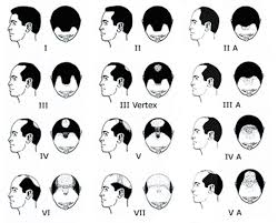 hair transplant calculator how much does a hair transplant for men cost